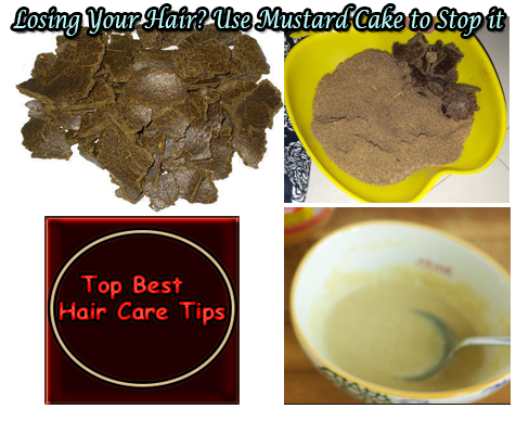 Losing Your Hair? Use Mustard Cake to Stop it