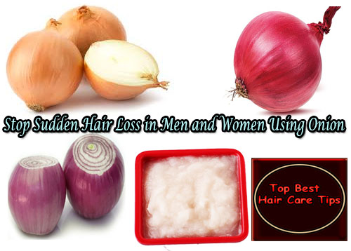 Stop Sudden Hair Loss in Men and Women Using Onion juice