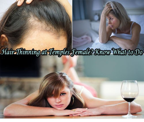 10 Tricks to Solve Hair Thinning at Temples Female
