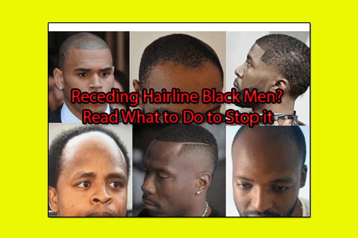 Receding Hairline Black Men? 7 Tricks to Do to Stop it