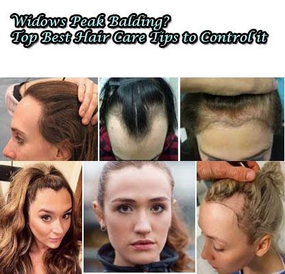 Widows Peak Balding - 7 Top Best Hair Care Tips
